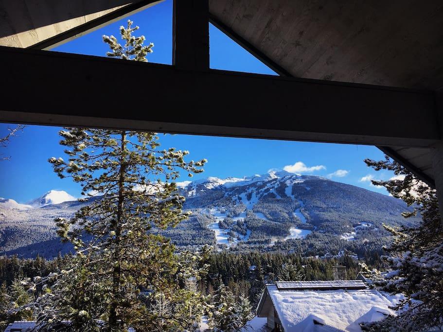View of Blackcomb Mountain